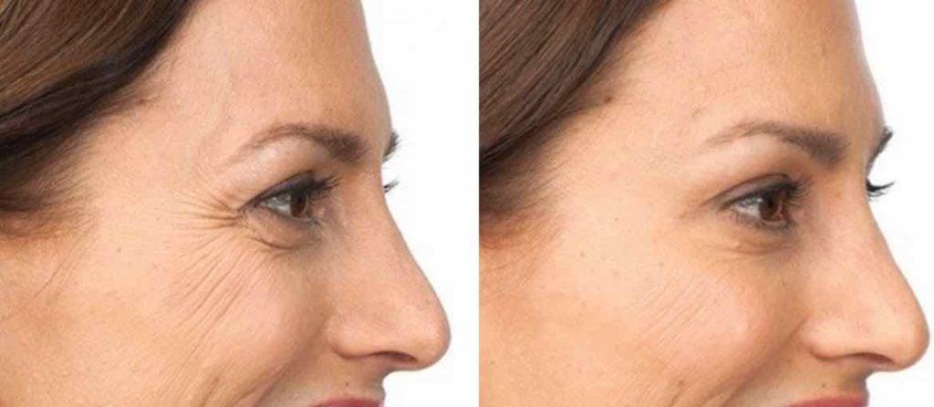 Før og etter botox filler behandling